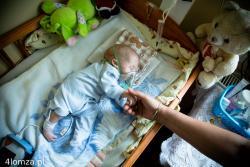 """Mały Karolek walczy o życie, a jego rodzice potrzebują pomocy. Taki apel opublikowaliśmy na 4lomza.pl, aby pomóc cierpiącemu na nieuleczalny zespół Edwardsa – zespół wad wrodzonych. Malec zmaga się też z kilkoma wadami serca i innymi schorzeniami. Karolek przez 24 godziny na dobę leży """"pod tlenem"""". Rodzice potrzebowali koncentratora tlenu. Dosłownie kilka minut po opublikowaniu apelu do redakcji zadzwoniła osoba, która posiadała urządzenie i zgodziła się je bezpłatnie udostępnić. Niestety, jak później się okazało, nie jest to oczekiwane urządzenie. Sporo innych ludzi także zgłaszało się do redakcji z chęcią udzielenia pomocy.  Karolek 6. lipca 2014 r. odszedł do aniołków."""